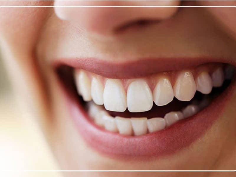 Eryaman Diş İle Sağlıklı Gülüşler