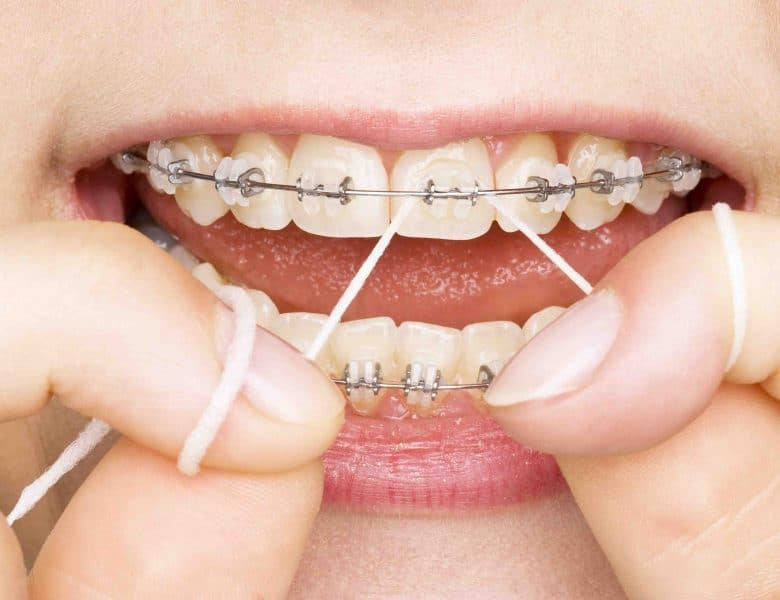 Eryaman Diş Sağlığı Hizmetleri Hemen Yanı Başınızda